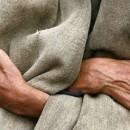 Aseguran-que-lepra-curable-1762721